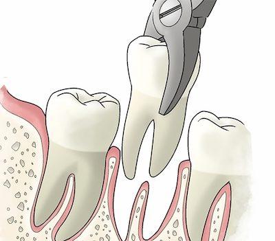 udalenie-zuba-4131598