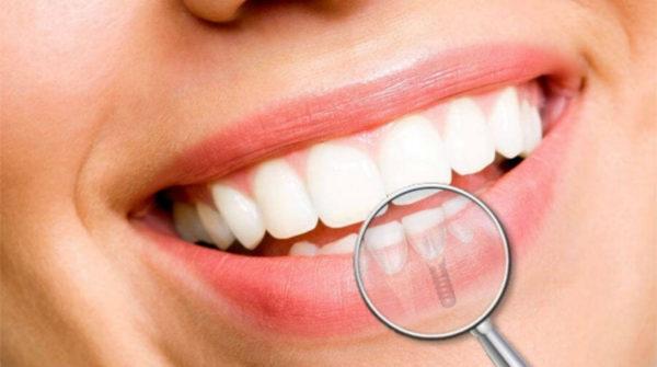 teeth-1180x659
